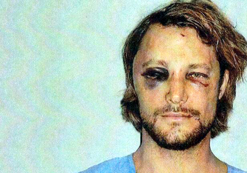Gabriel Aubry Injuries