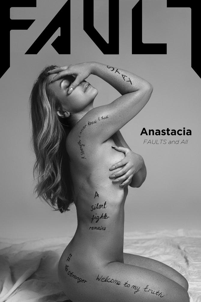 Anastacia bares all