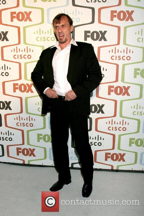 Robert Knepper and Fox 1