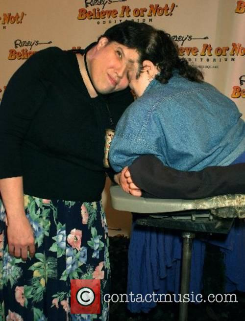 Dori Schappell and Lori Schappell, oldest female conjoined...