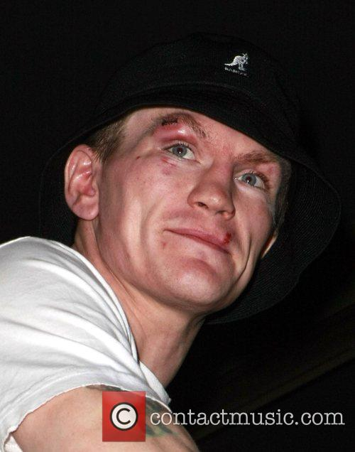 Ricky Hatton Just hours after losing the Welterweight...