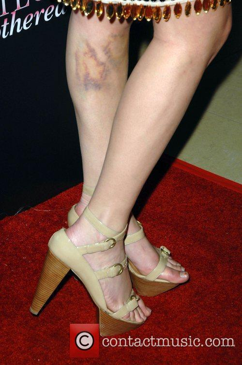Britany Flickinger With Bruising On Her Leg 2