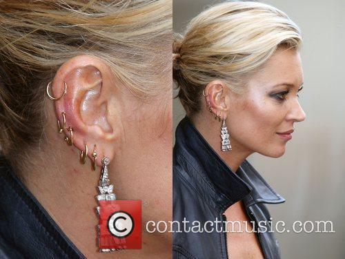 Kate Moss' ear is red and sore looking...