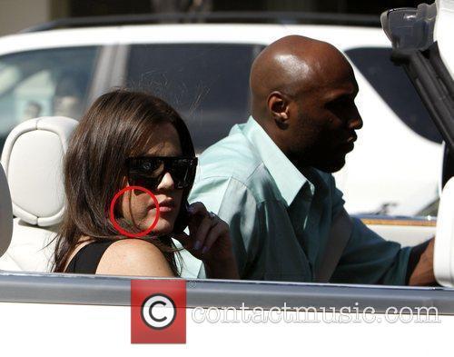 Khloe Kardashian showing spots on her face leaves...