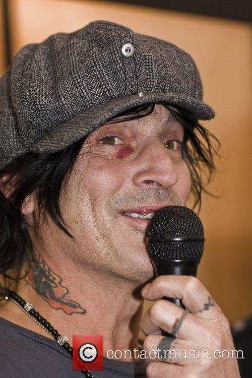 Tommy Lee with a black eye promoting ThePublicRecord.com...