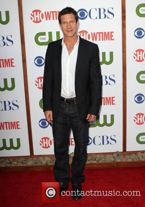 Dylan Walsh      CBS,The...