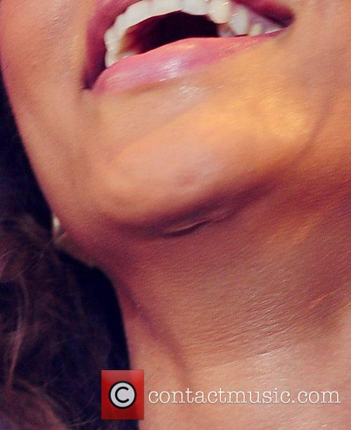 Rihanna reveals an as-before-unseen scar on her chin....
