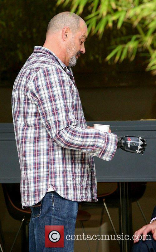 Man with a prosthetic bionic arm,  outside...