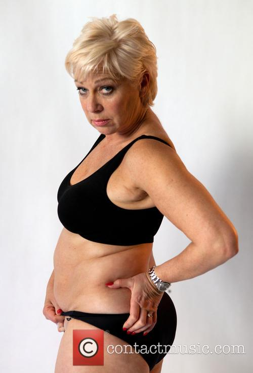 LighterLife names Denise Welch as Ambassador