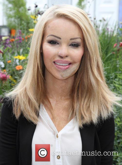 Katie Piper, Royal Hospital Chelsea