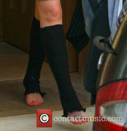 Chloe Jasmine bruised foot