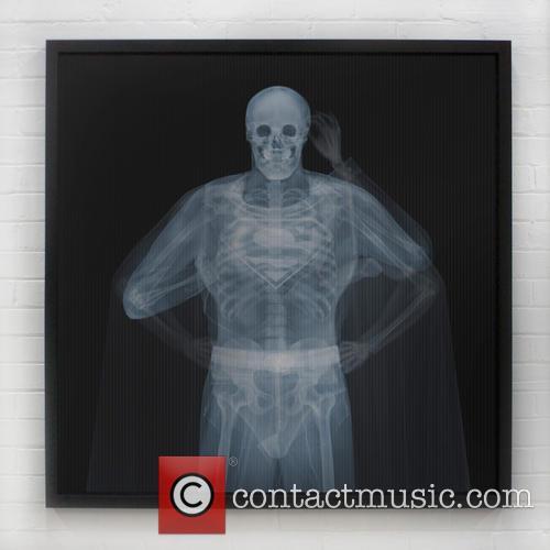 X-ray Art Exhibited and Geneva Gallery 10