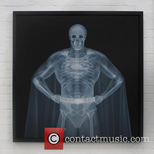 X-ray Art Exhibited and Geneva Gallery 11
