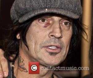 Tommy Lee displays a black eye as he attends The Public Record during the Consumer Electronics Show 2010 held at...