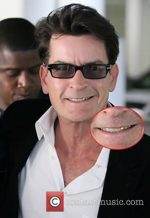Charlie Sheen smiling and showing off gold veneers Charlie Sheen leaving an office building in Beverly Hills with his girlfriend...