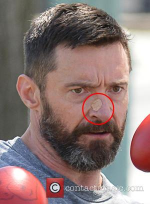 Hugh Jackman Attends 'X-men: Days Of Future Past' Premiere With Bandaged Nose