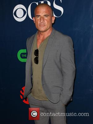 Dominic Purcell Still Recovering After On Set Iron Bar Drama