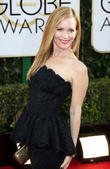 Leslie Mann Contracted Skin Rash From Kissing Scene