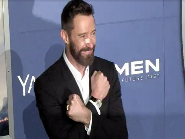 Hugh Jackman Sports Bandaged Nose At 'X-Men: Days Of Future Past' World Premiere - Part 1